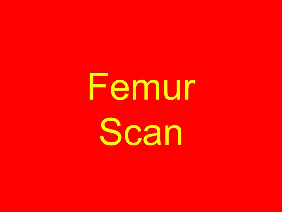 Femur Scan