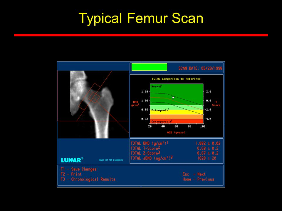 Typical Femur Scan
