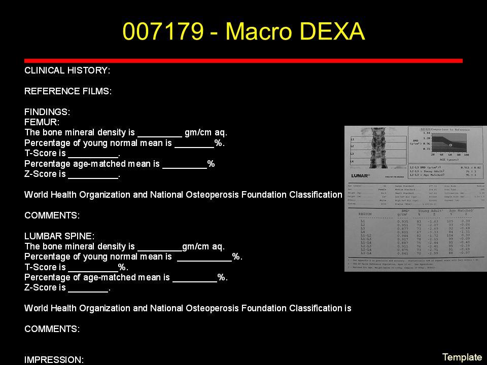 007179 - Macro DEXA Template
