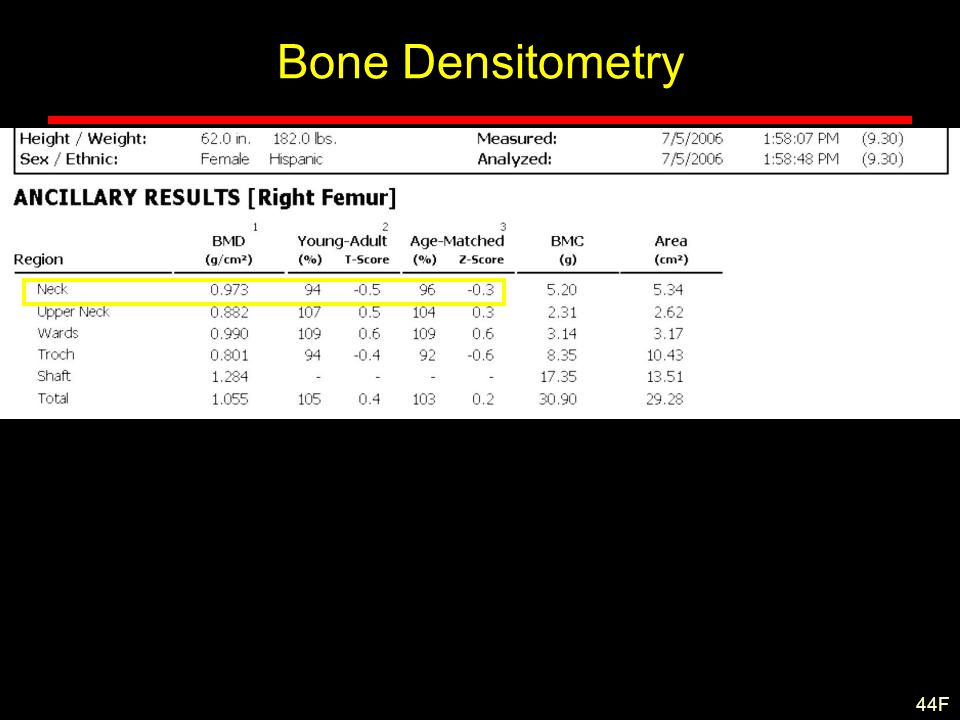 Bone Densitometry 44F