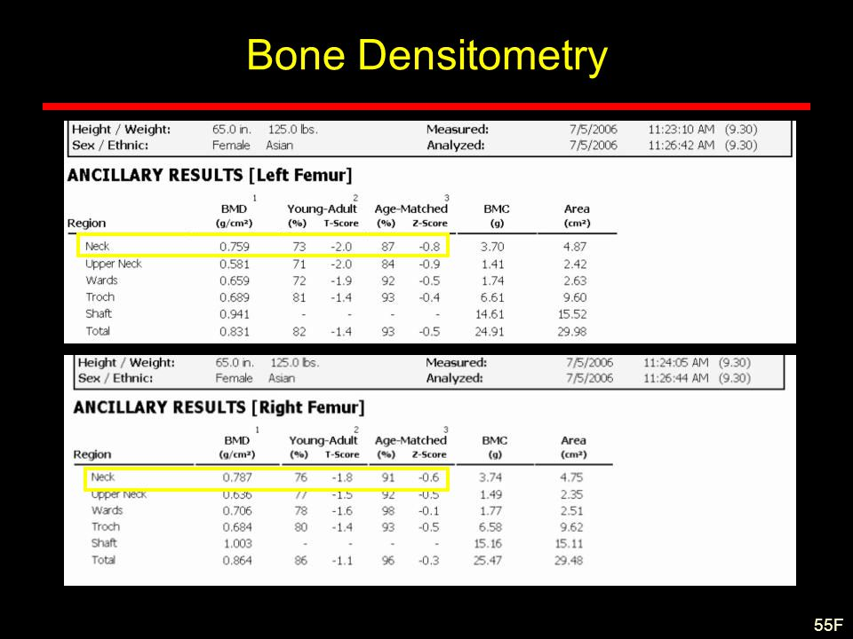 Bone Densitometry 55F