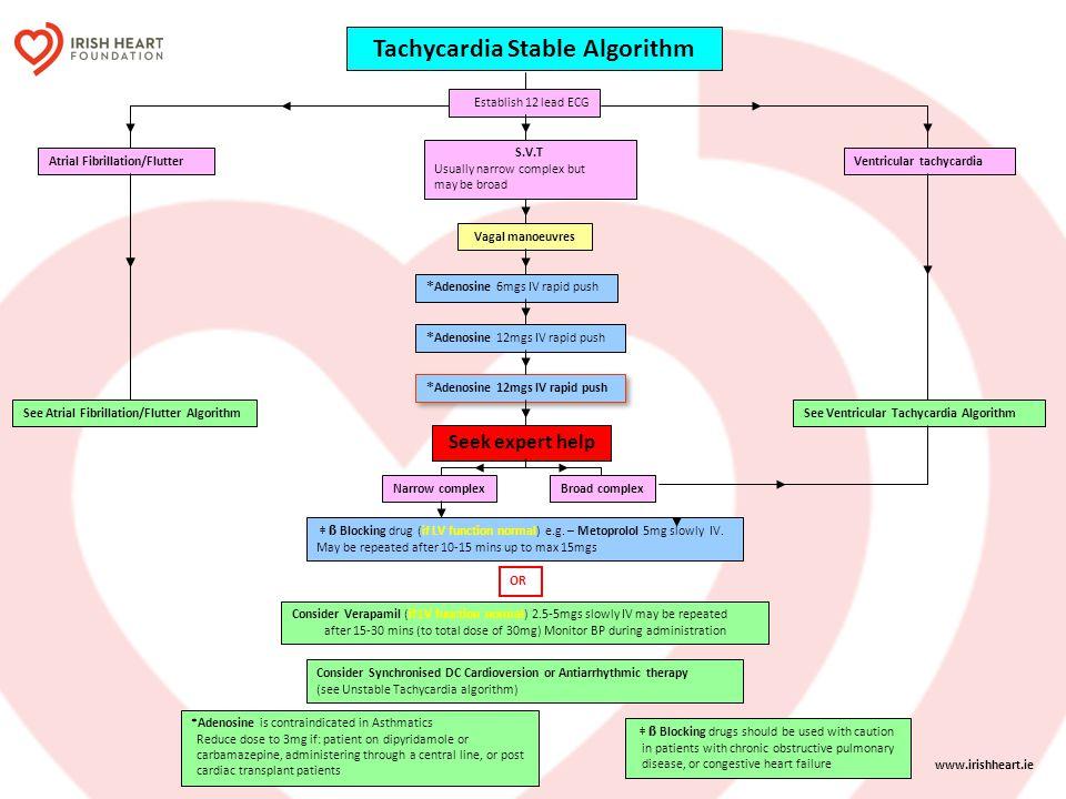 Tachycardia Stable Algorithm