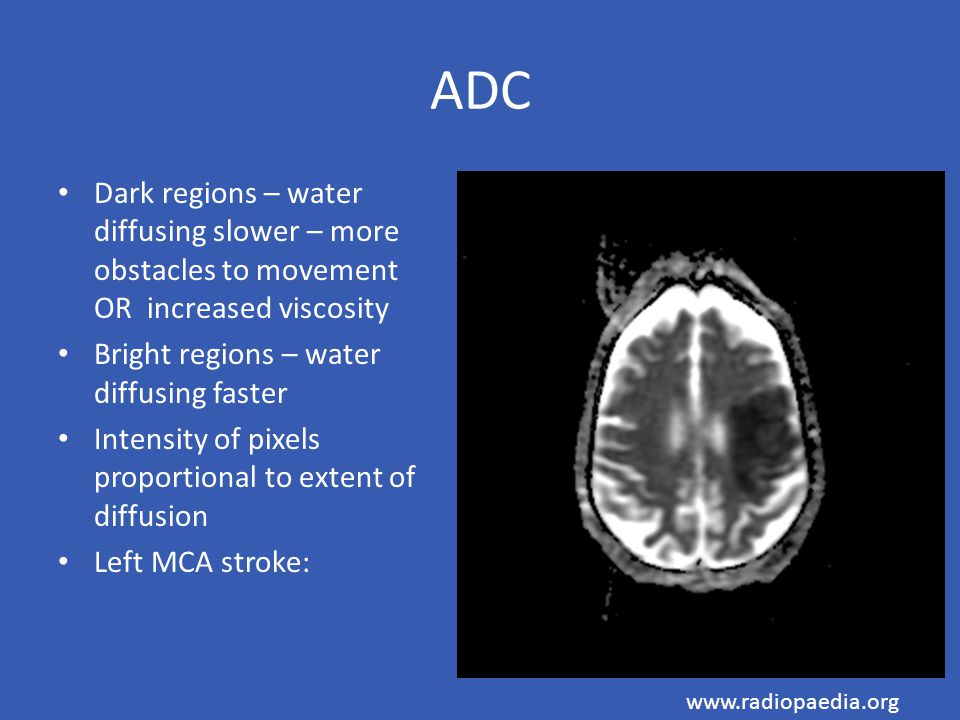 ADC Dark regions – water diffusing slower – more obstacles to movement OR increased viscosity. Bright regions – water diffusing faster.