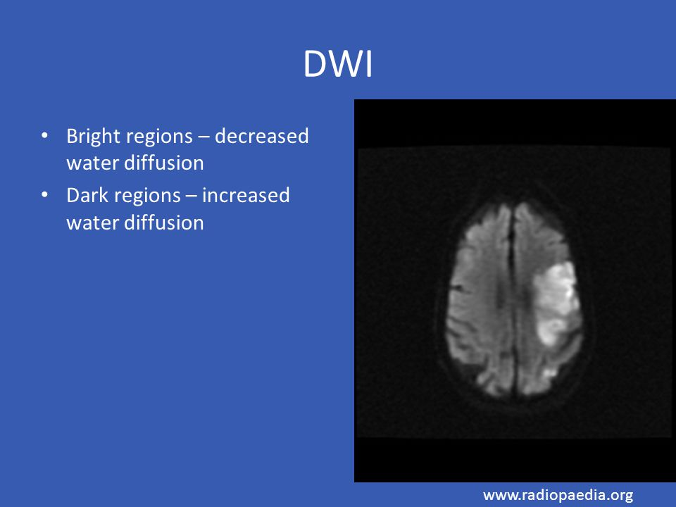 DWI Bright regions – decreased water diffusion