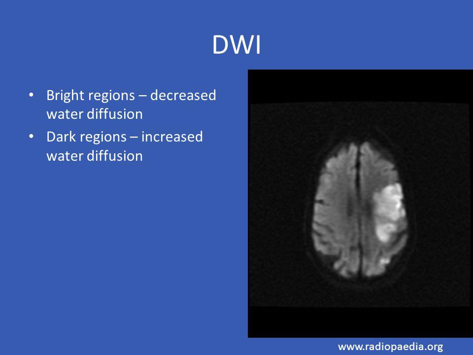 DWI Bright regions – decreased water diffusion