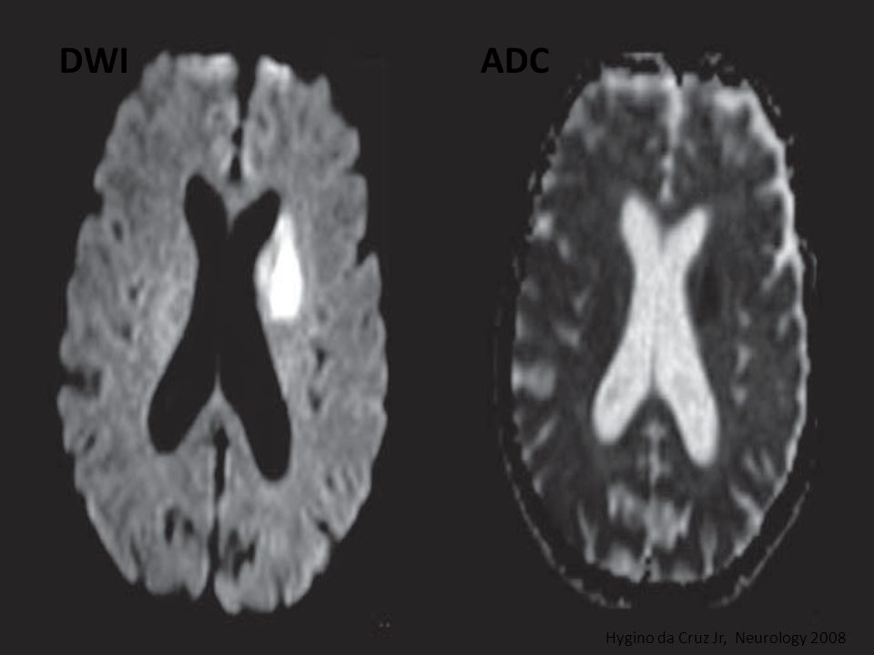 DWI ADC Hygino da Cruz Jr, Neurology 2008