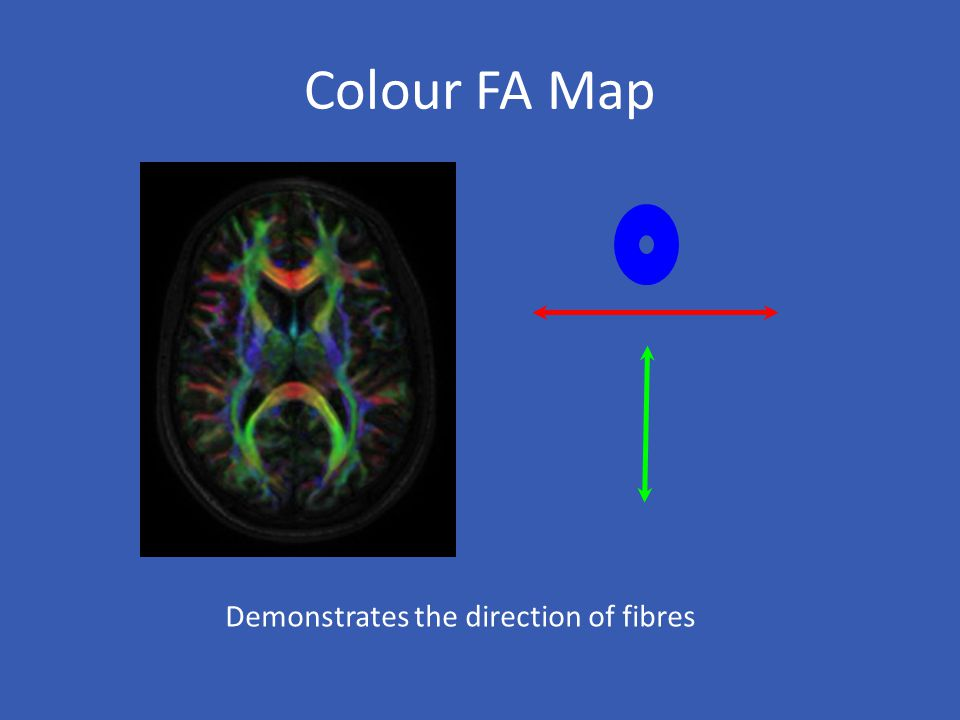 Colour FA Map Demonstrates the direction of fibres