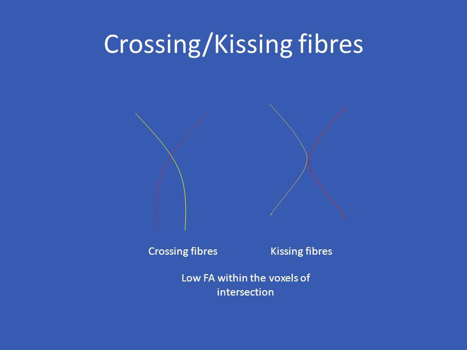 Crossing/Kissing fibres