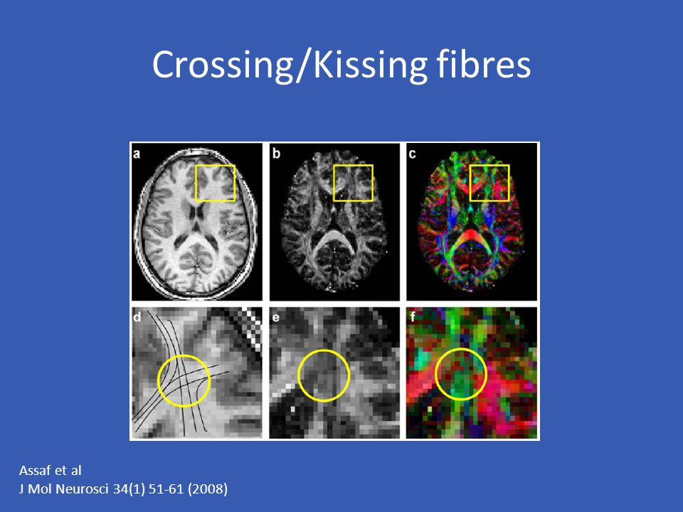 Crossing/Kissing fibres