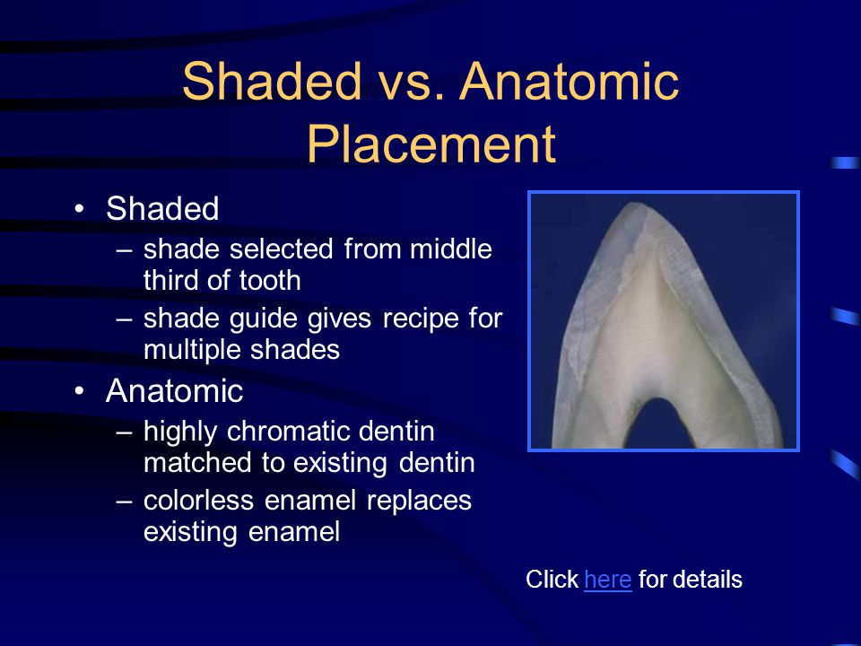 Shaded vs. Anatomic Placement