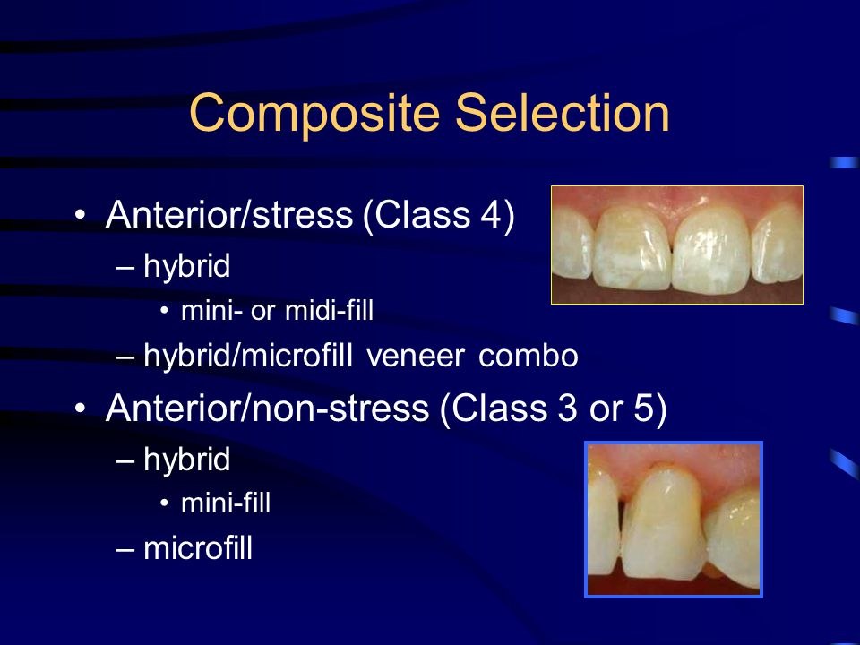 Composite Selection Anterior/stress (Class 4)
