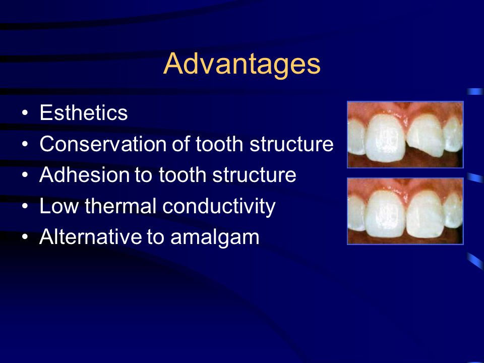 Advantages Esthetics Conservation of tooth structure