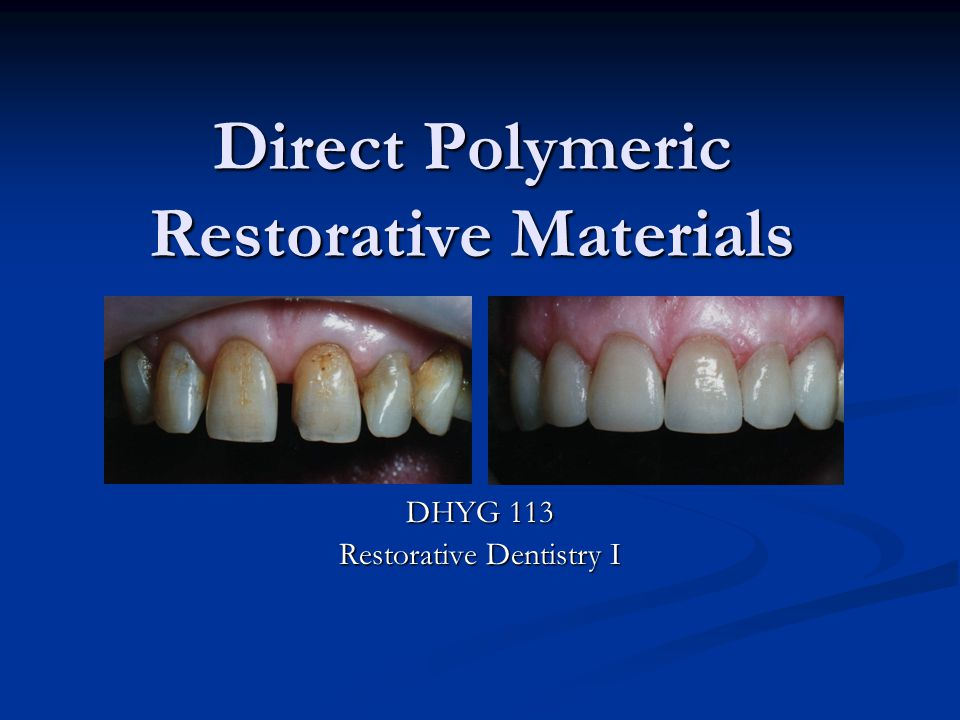 Direct Polymeric Restorative Materials