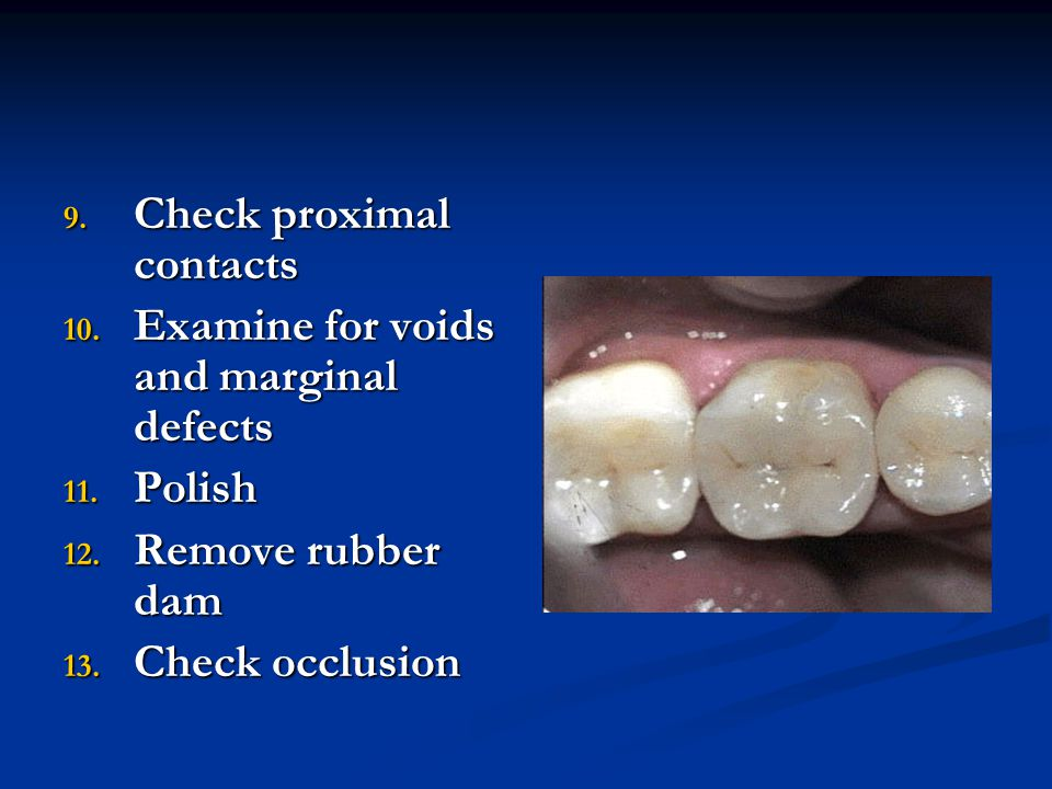 Check proximal contacts