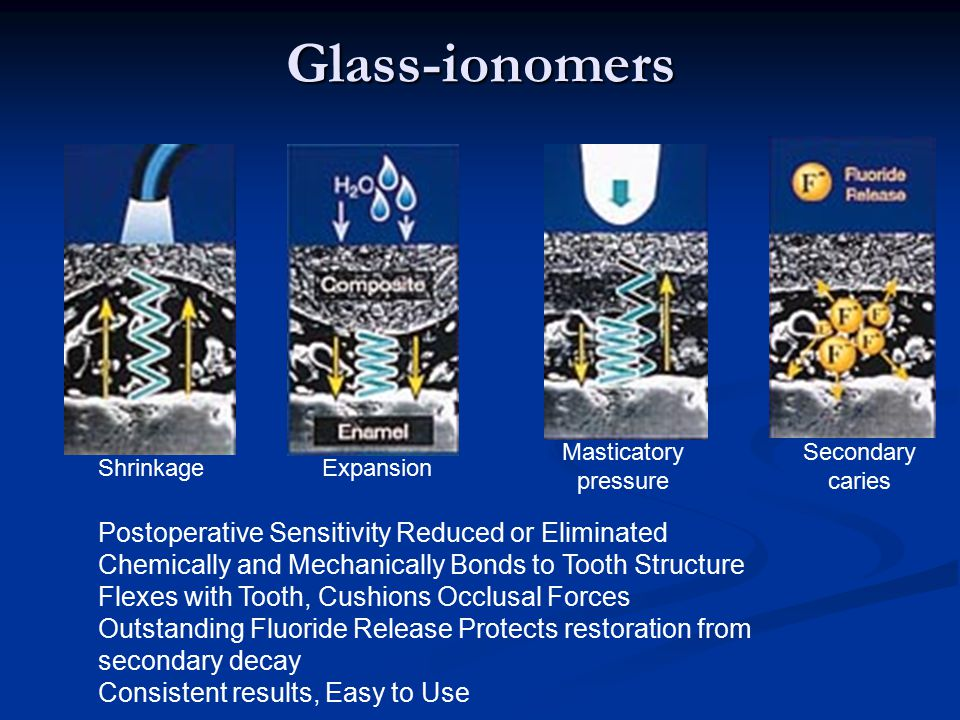Glass-ionomers Postoperative Sensitivity Reduced or Eliminated