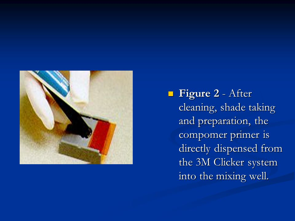 Figure 2 - After cleaning, shade taking and preparation, the compomer primer is directly dispensed from the 3M Clicker system into the mixing well.