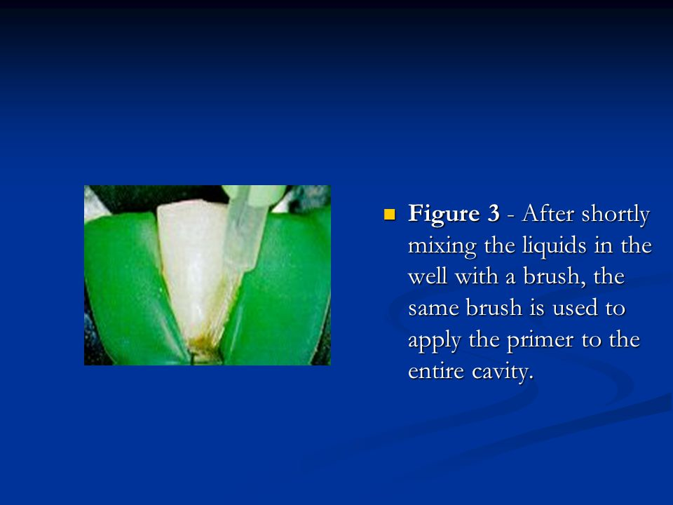Figure 3 - After shortly mixing the liquids in the well with a brush, the same brush is used to apply the primer to the entire cavity.