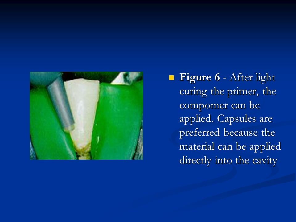 Figure 6 - After light curing the primer, the compomer can be applied
