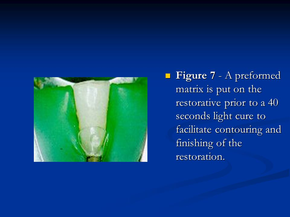Figure 7 - A preformed matrix is put on the restorative prior to a 40 seconds light cure to facilitate contouring and finishing of the restoration.