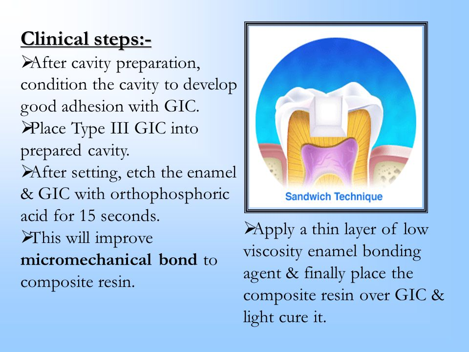 Clinical steps:- After cavity preparation,