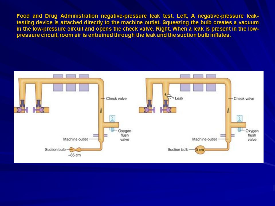 Food and Drug Administration negative-pressure leak test