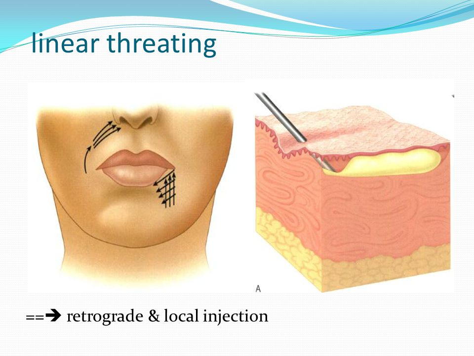 linear threating == retrograde & local injection