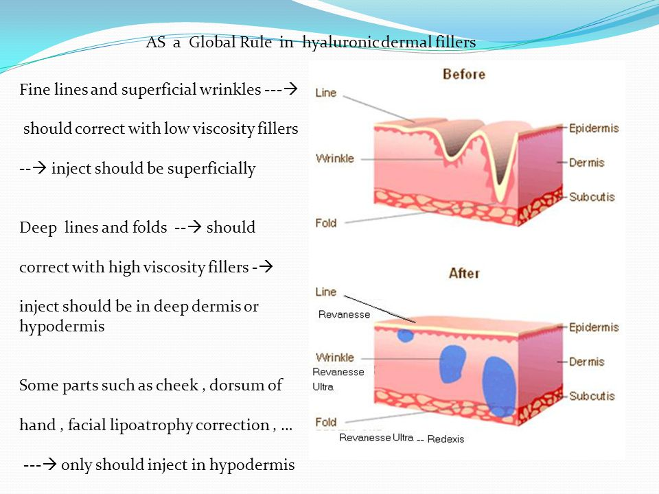 AS a Global Rule in hyaluronic dermal fillers
