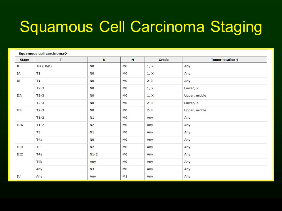Squamous Cell Carcinoma Staging