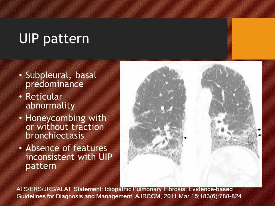 UIP pattern Subpleural, basal predominance Reticular abnormality