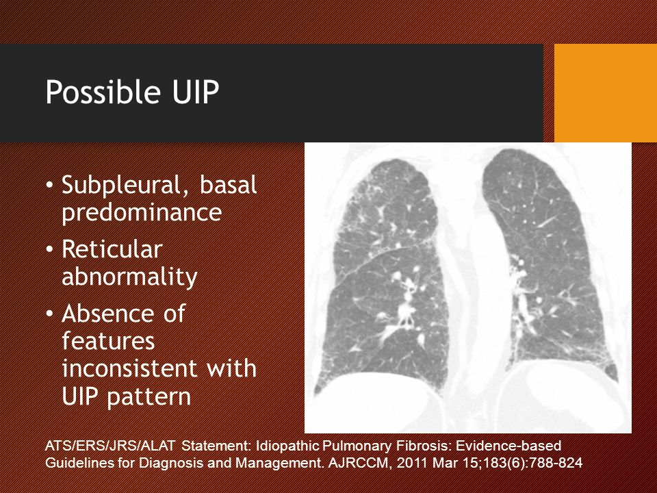 Possible UIP Subpleural, basal predominance Reticular abnormality