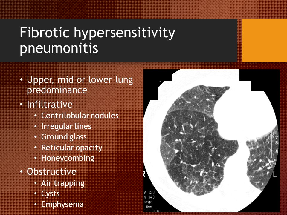 Fibrotic hypersensitivity pneumonitis