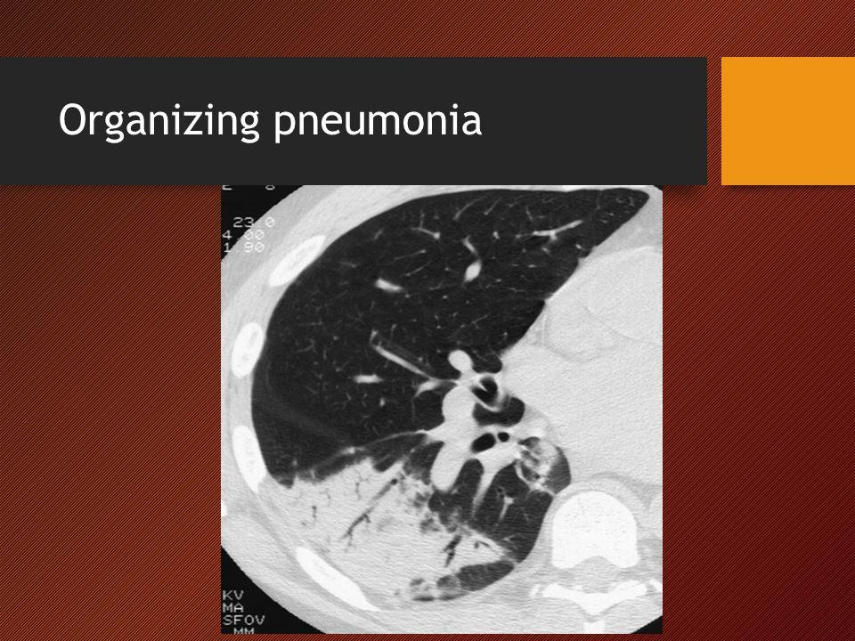 Organizing pneumonia