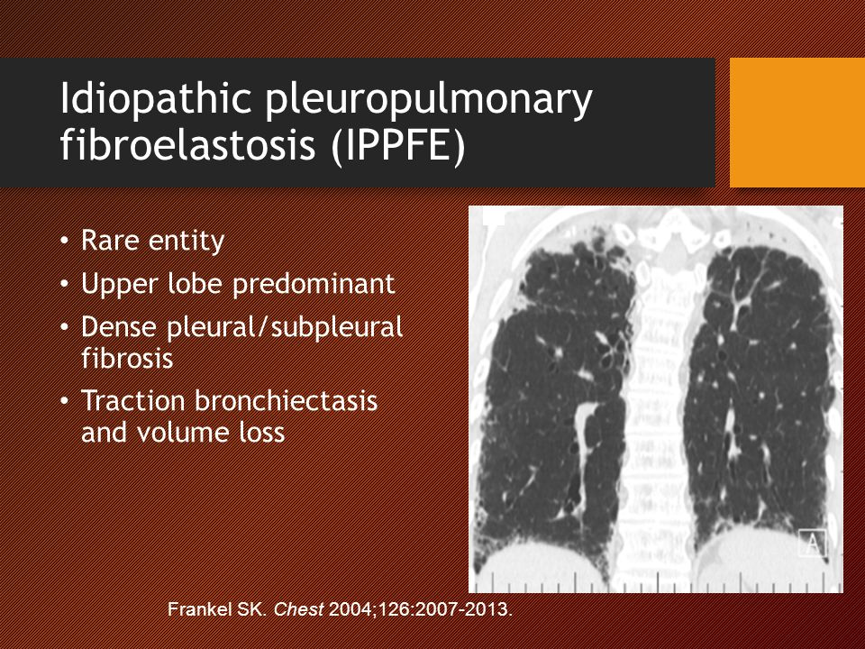 Idiopathic pleuropulmonary fibroelastosis (IPPFE)