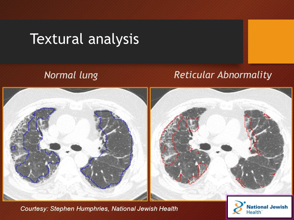 Textural analysis Normal lung Reticular Abnormality