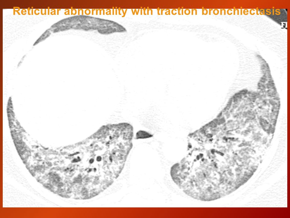 Reticular abnormality with traction bronchiectasis
