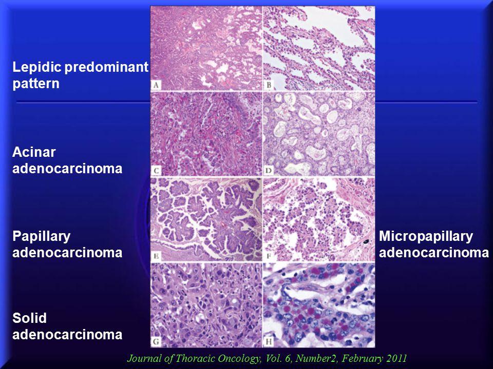Papillary adenocarcinoma