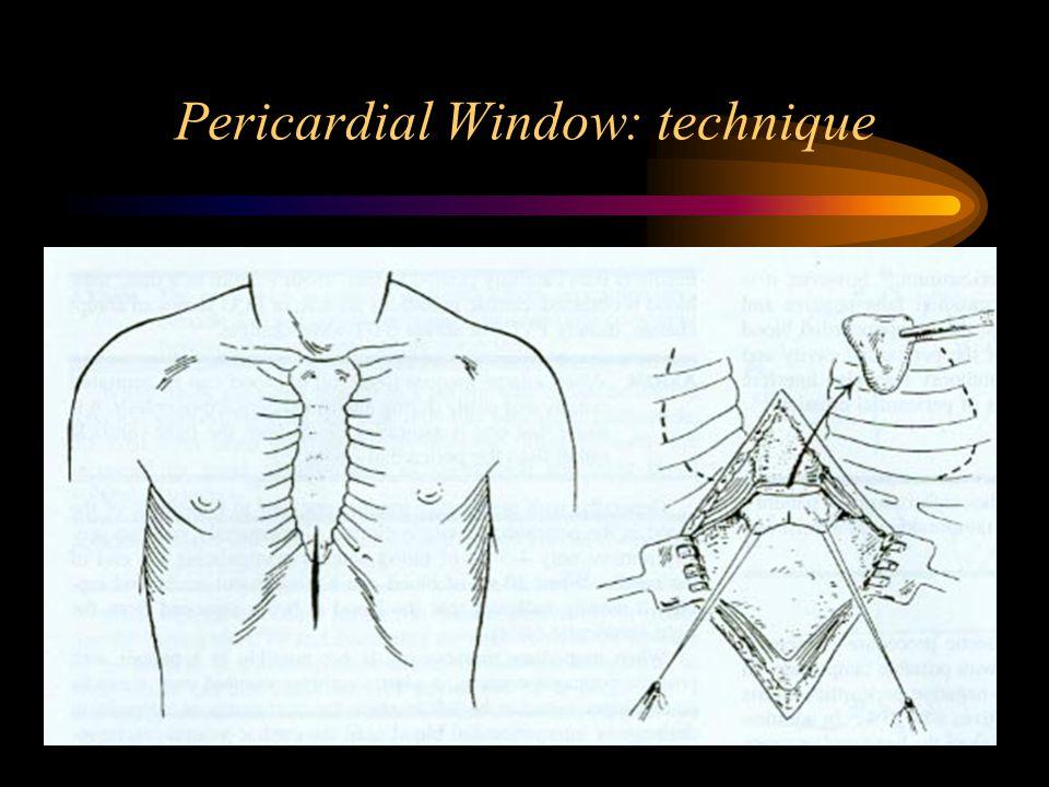 Pericardial Window: technique