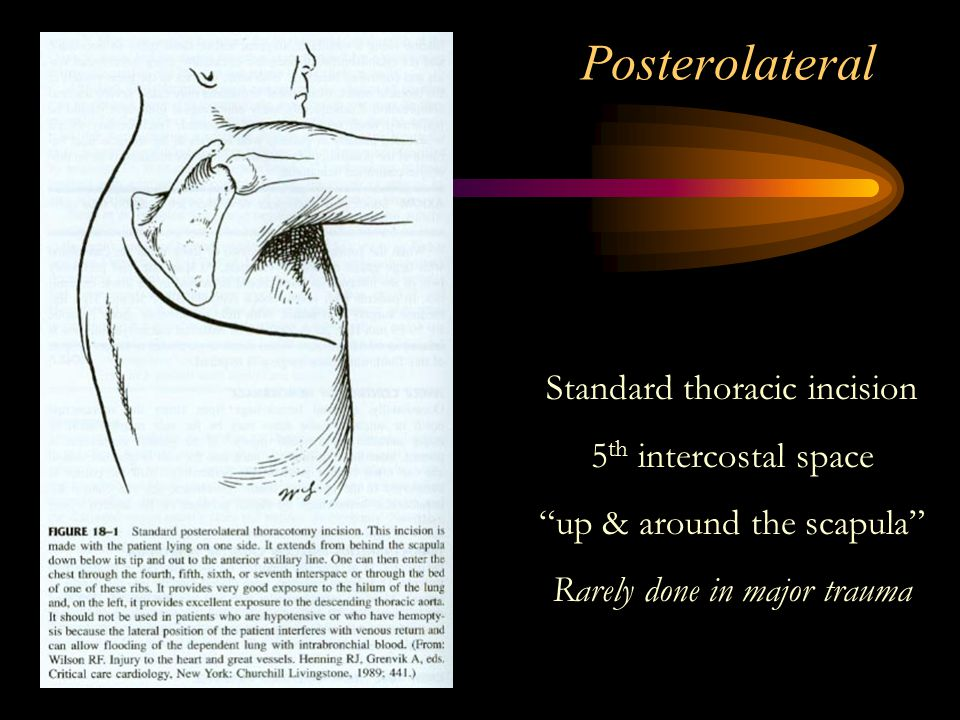 Posterolateral Standard thoracic incision 5th intercostal space