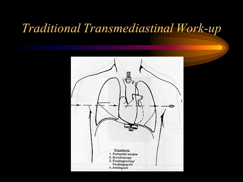 Traditional Transmediastinal Work-up