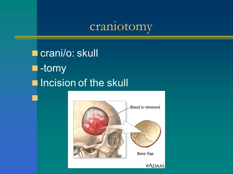 craniotomy crani/o: skull -tomy Incision of the skull