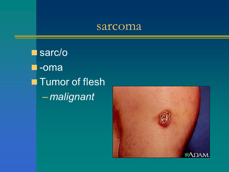 sarcoma sarc/o -oma Tumor of flesh malignant