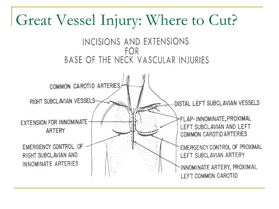 Great Vessel Injury: Where to Cut
