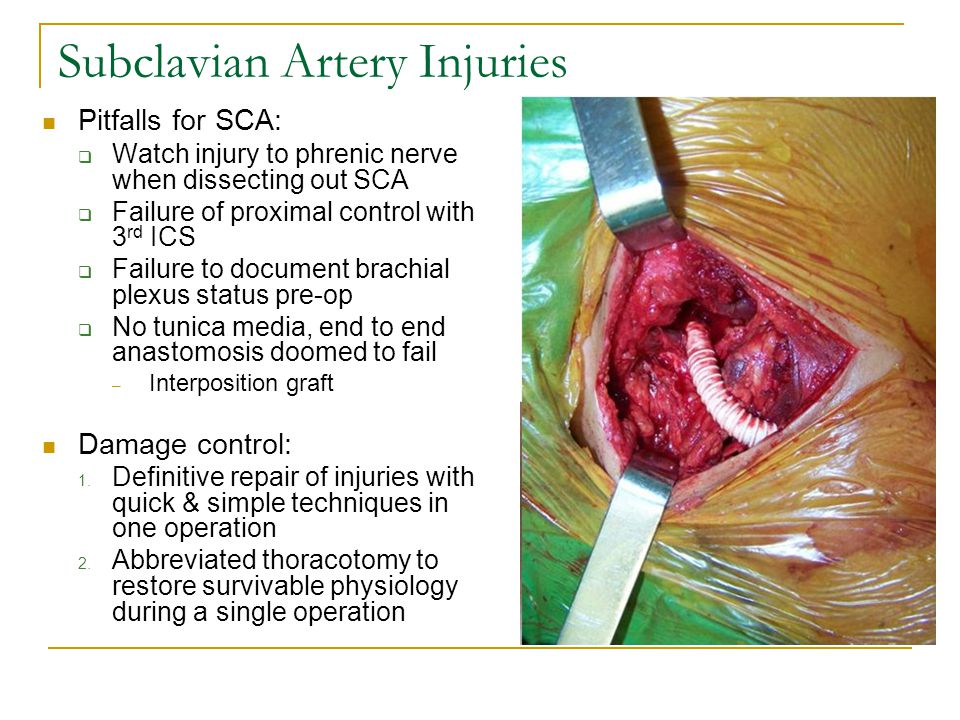 Subclavian Artery Injuries