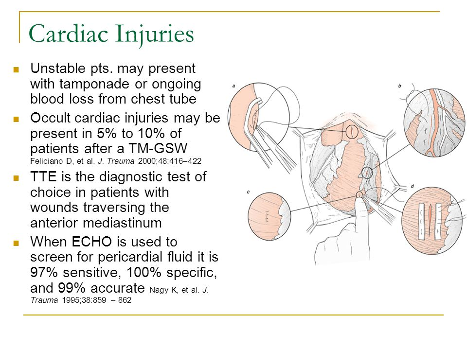 Cardiac Injuries Unstable pts. may present with tamponade or ongoing blood loss from chest tube.