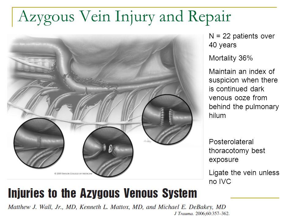 Azygous Vein Injury and Repair