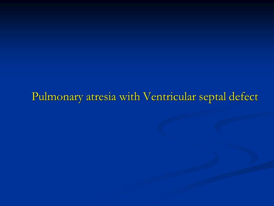 Pulmonary atresia with Ventricular septal defect