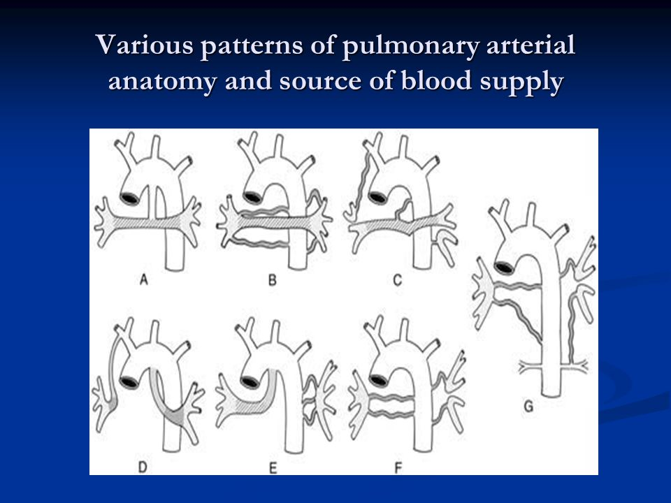 Various patterns of pulmonary arterial anatomy and source of blood supply