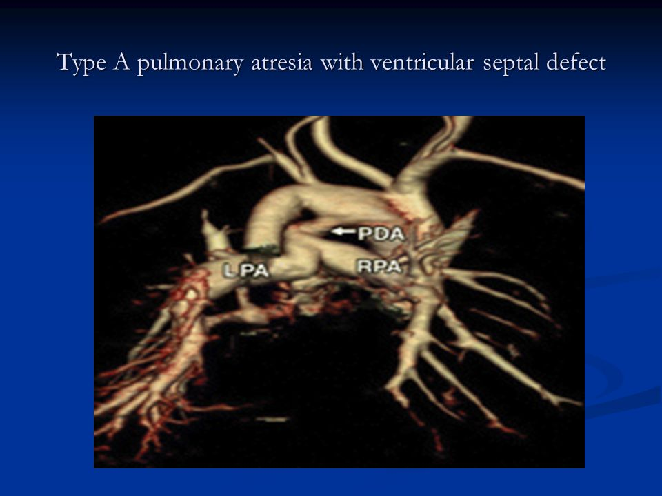 Type A pulmonary atresia with ventricular septal defect