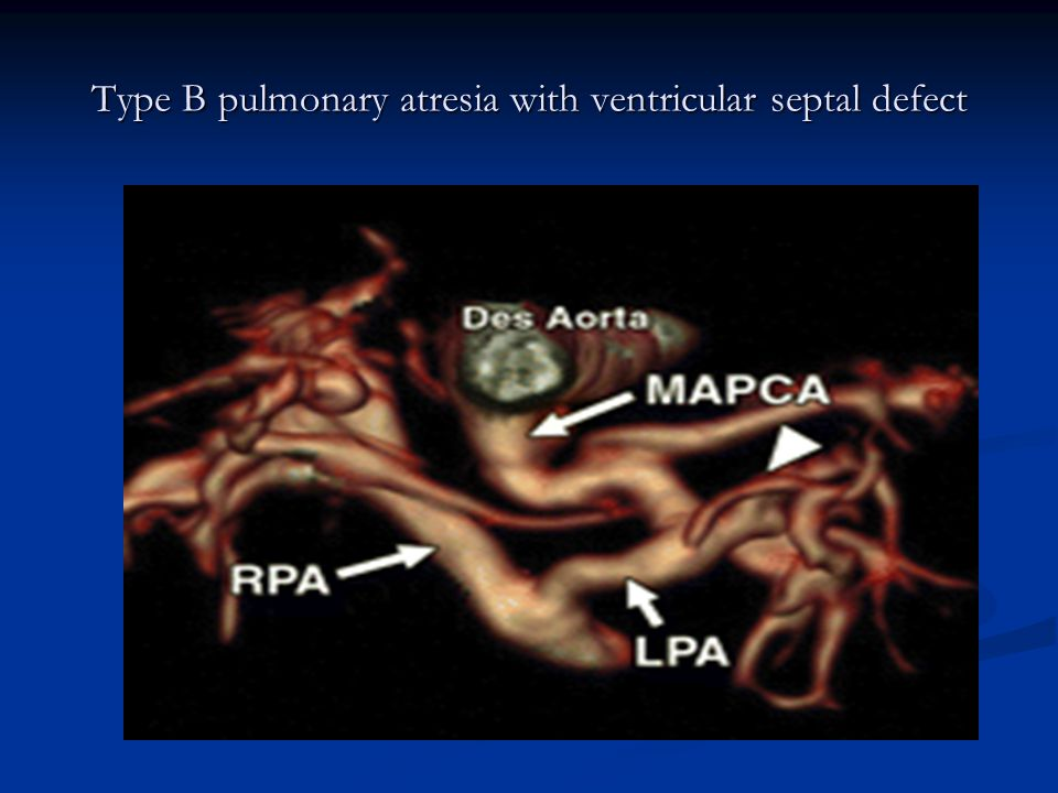 Type B pulmonary atresia with ventricular septal defect