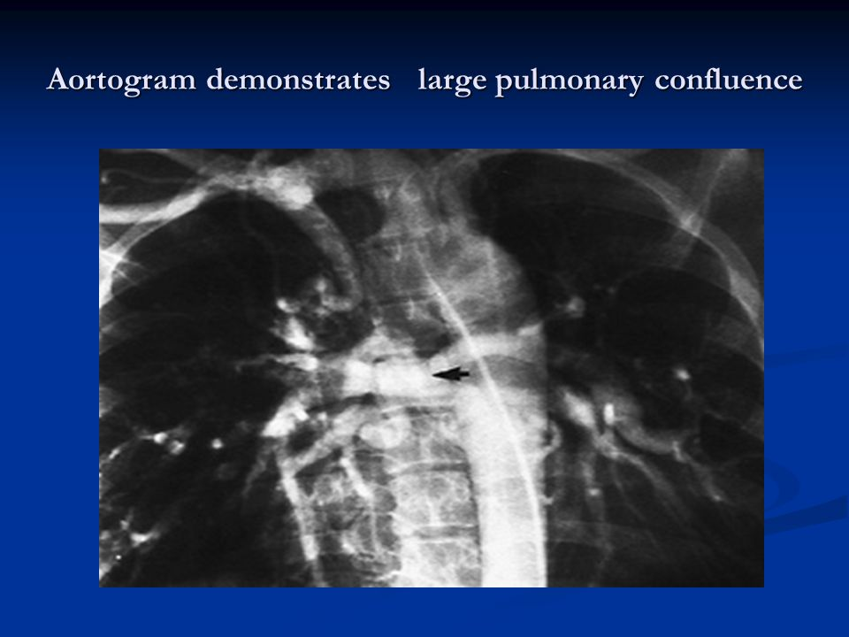 Aortogram demonstrates large pulmonary confluence